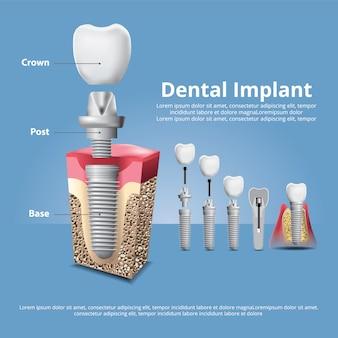 Dentes humanos e implante dentário ilustração