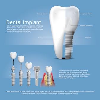 Dentes humanos e modelo de implante dentário