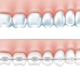 Dentes humanos vetoriais com aparelho de metal e vista lateral da bandeja de clareamento isolada no fundo branco