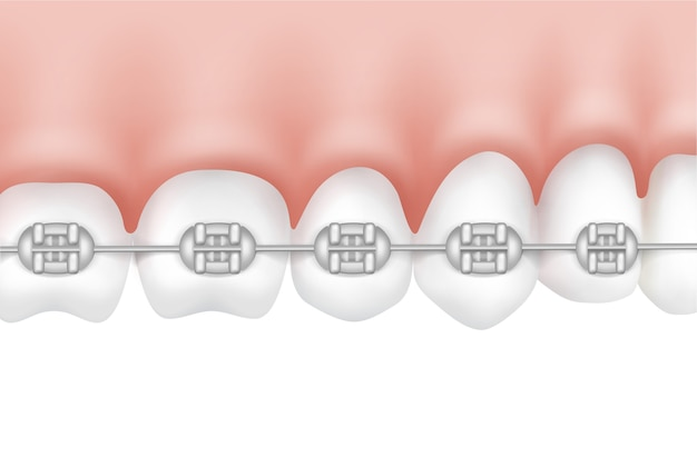 Dentes humanos vetoriais com vista lateral de aparelho de metal isolado no fundo branco