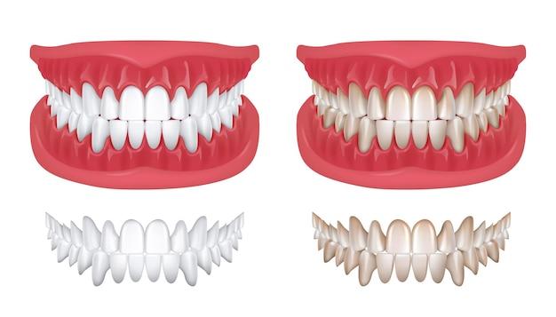 Dentes realistas. sorriso 3d branco isolado para clínica de ortodontia, conceito de odontologia com renderização de mandíbula branca