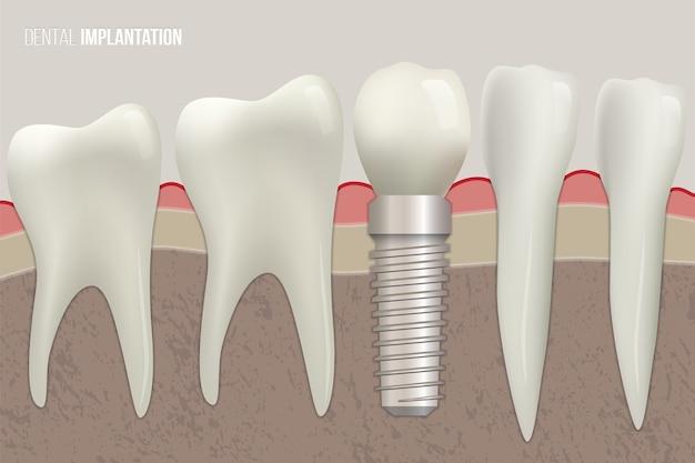 Dentes sãos e implante dentário na ilustração médica.