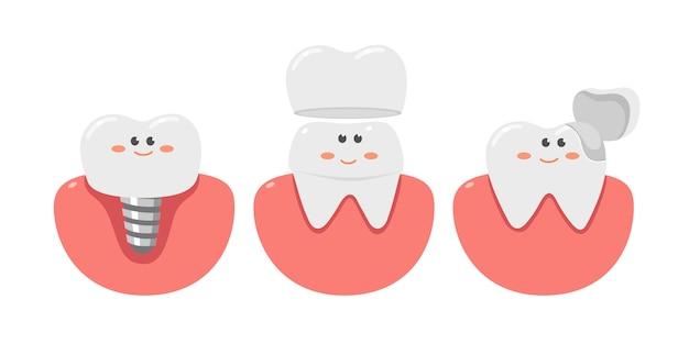 Dentes saudáveis com um implante dentário, cuidados de saúde.