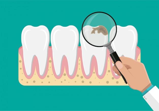 Dentista com lupa examina os dentes.