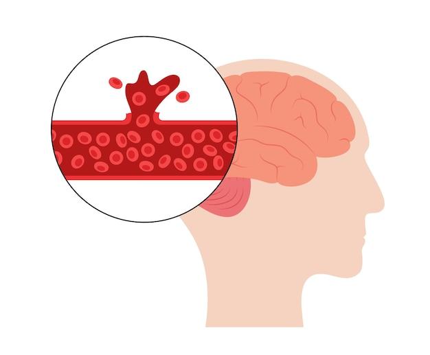 Derrame cerebral hemorrágico