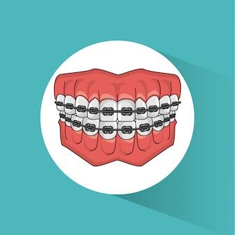 Desenho de aparelho dentário