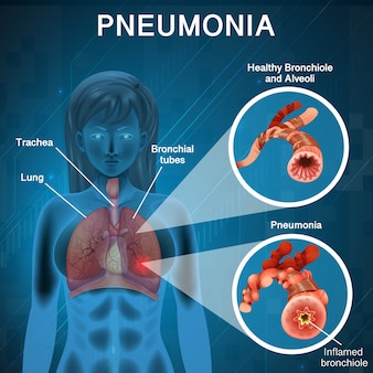 Design de cartaz para pneumonia com diagrama de pulmão humano