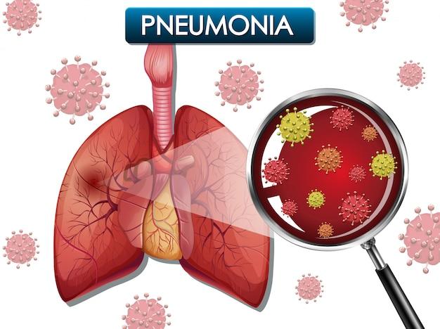 Design de cartaz para pneumonia com pulmões humanos e células de vírus