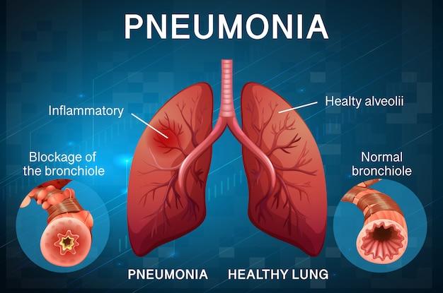 Design de cartaz para pneumonia com pulmões humanos