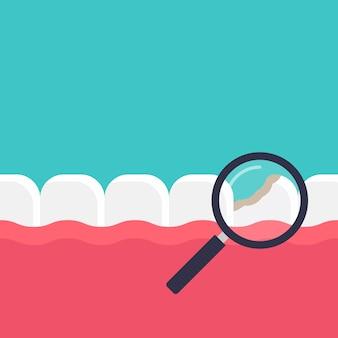 Diagnóstico de ilustração plana de cárie dentária