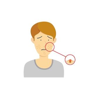 Diagrama da acne