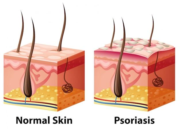 Diagrama da pele humana com normal e psoríase