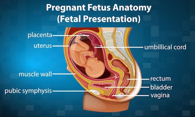 Diagrama de anatomia de feto grávida