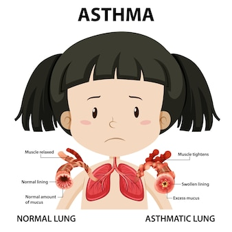 Diagrama de asma com pulmão normal e pulmão asmático
