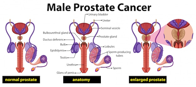 Diagrama de câncer de próstata masculino