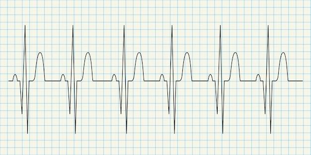 Diagrama de eletrocardiograma em papel quadriculado
