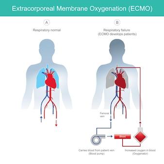 Diagrama de oxigenação por membrana extracorpórea para explicar a insuficiência respiratória de pacientes de resgate usando ecmo de oxigenação por membrana extracorpórea instrumental