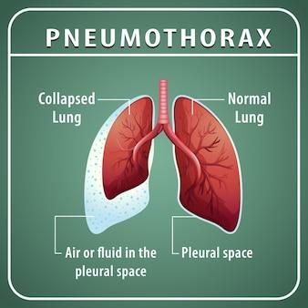 Diagrama de pneumotórax com pulmão colapsado e pulmão normal
