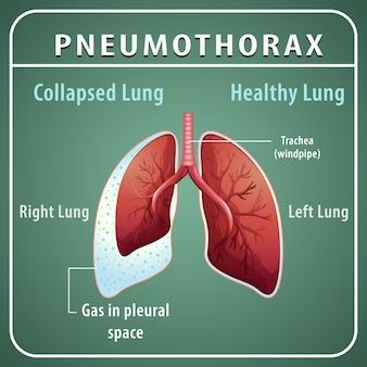 Diagrama de pneumotórax com pulmão colapsado e pulmão saudável