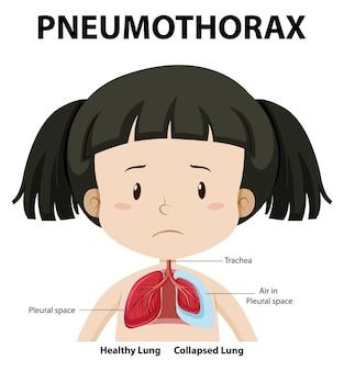 Diagrama de pneumotórax da anatomia humana
