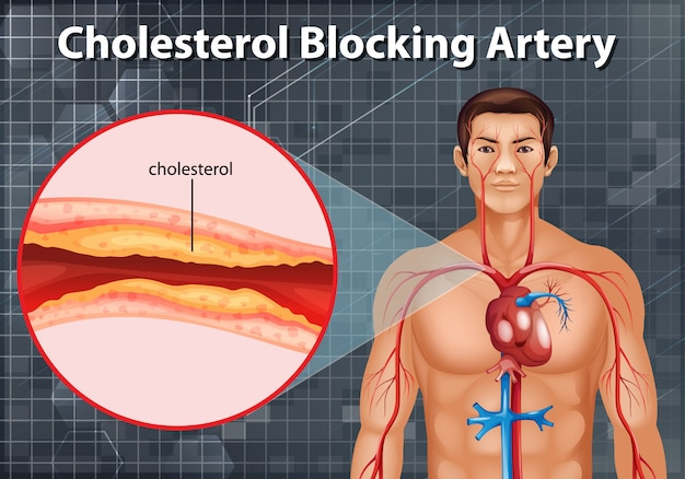 Diagrama mostrando a artéria bloqueadora de colesterol no corpo humano