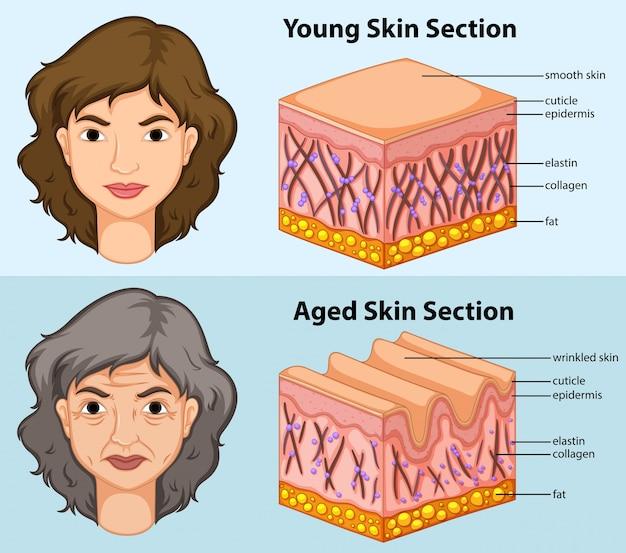Diagrama mostrando a pele jovem e envelhecida em humanos