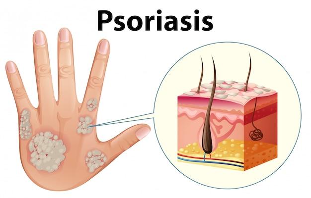 Diagrama mostrando a psoríase na mão humana