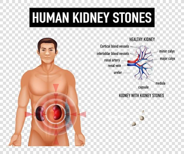 Diagrama mostrando cálculos renais humanos em fundo transparente