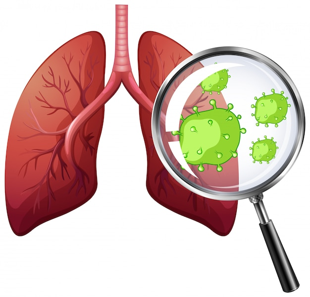 Diagrama mostrando células de vírus nos pulmões humanos