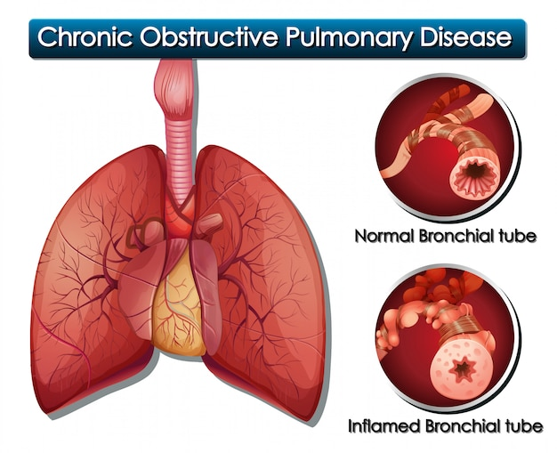 Diagrama mostrando doença pulmonar obstrutiva crônica