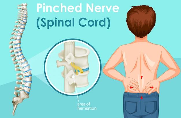 Diagrama mostrando dor nas costas em humanos