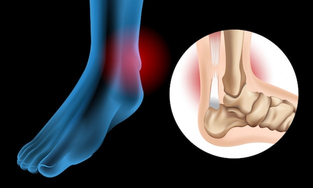 Diagrama mostrando lágrima crônica do tendão de aquiles