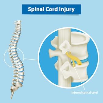 Diagrama mostrando lesão medular