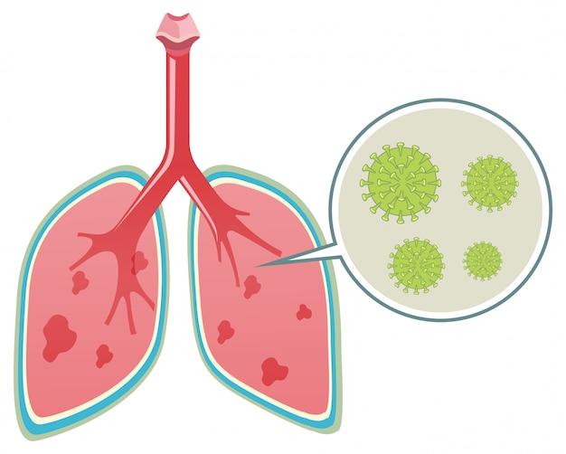 Diagrama mostrando o coronavírus nos pulmões humanos
