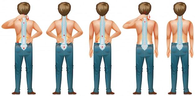 Diagrama mostrando o homem humano com dor nas costas