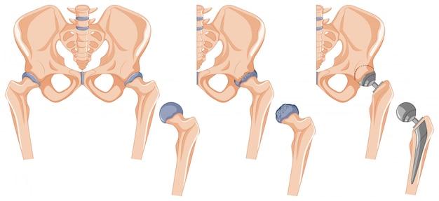 Diagrama mostrando o tratamento ósseo do quadril