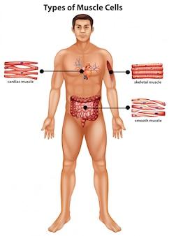 Diagrama mostrando os tipos de células musculares
