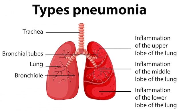 Diagrama mostrando tipos de pneumonia
