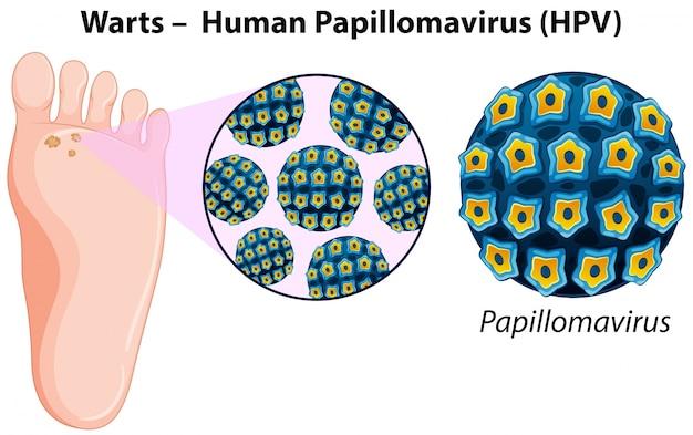 Diagrama mostrando verrugas no pé humano