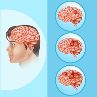Diagrama que mostra câncer cerebral em humanos