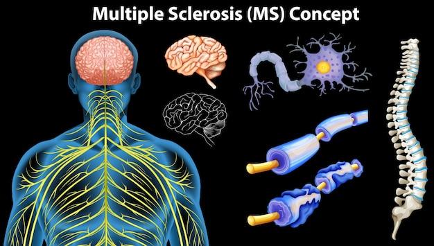 Diagrama que mostra o conceito de esclerose múltipla