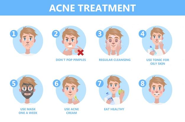 Dicas para tratamento da acne. como obter uma instrução clara do rosto.