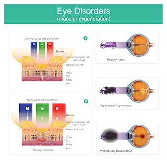 Distúrbios oculares degeneração macular. a ilustração explica os sintomas de visão que podem resultar em ponto borrado, preto ou sem visão, logo no início.