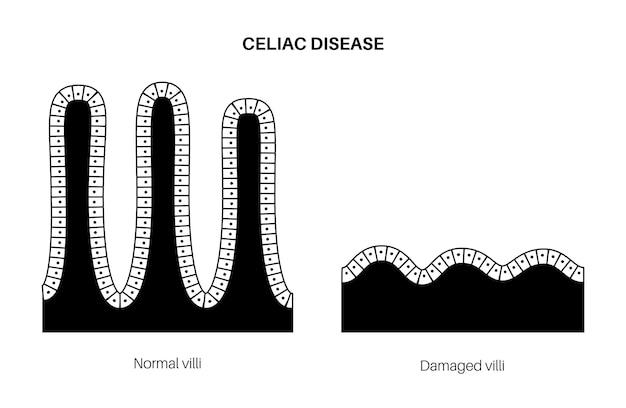Doença celíaca. vilosidades intestinais danificadas e saudáveis na área de superfície das paredes intestinais.