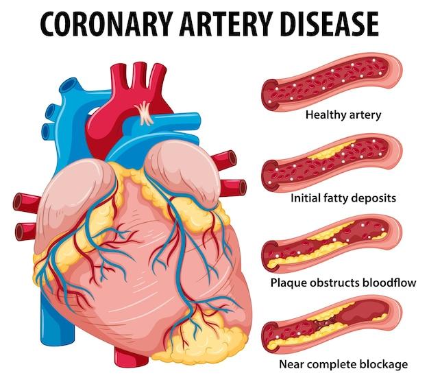 Doença da artéria coronária para educação em saúde infográfico