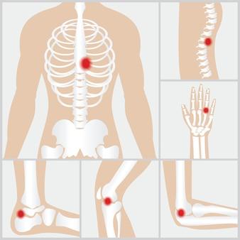 Doença das articulações e ossos