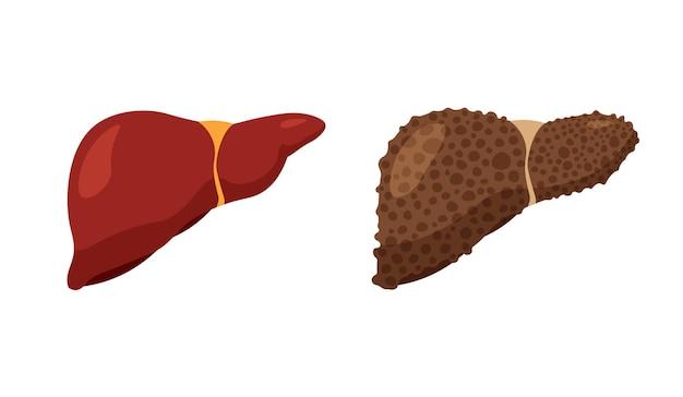 Doença hepática atual. fígado doente e forte e saudável. anatomia do sistema digestivo. ícone de fibrose e cirrose isolado no fundo branco.