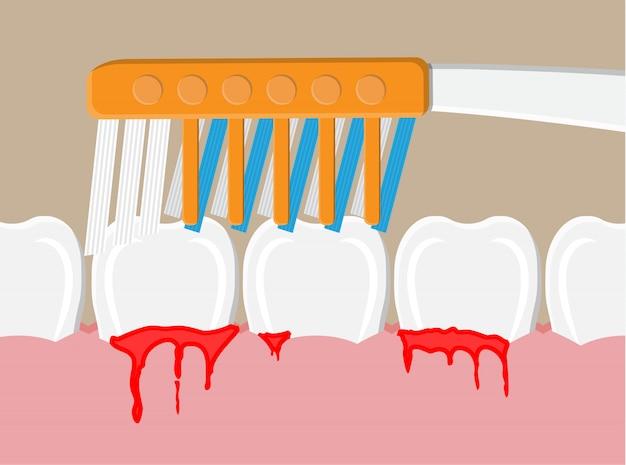 Doença periodontal, sangramento nas gengivas