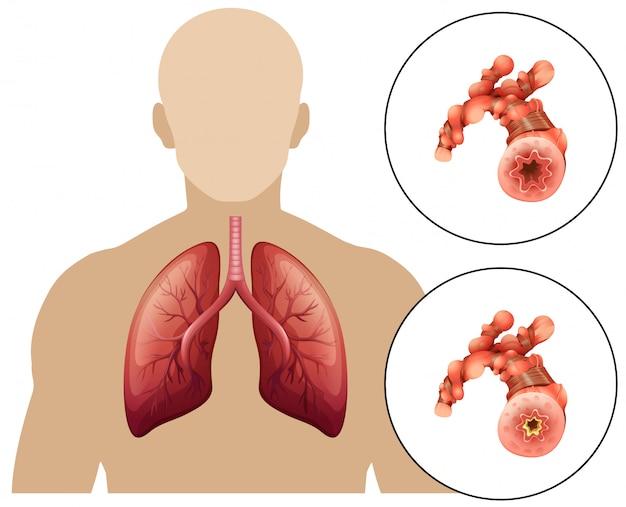 Doença pulmonar obstrutiva crônica humana
