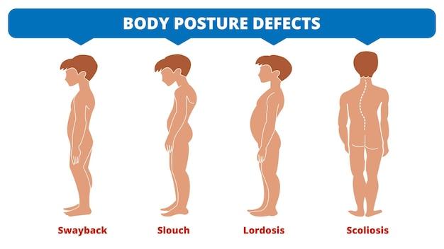 Doenças da coluna vertebral. escoliose, lordose, balanço, desleixo. defeitos de postura corporal. tipos de deformidade da coluna vertebral. infográfico de doenças médicas. sintoma diagnóstico. silhueta de meninos. ilustração vetorial.